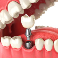 3D Model of a dental implant