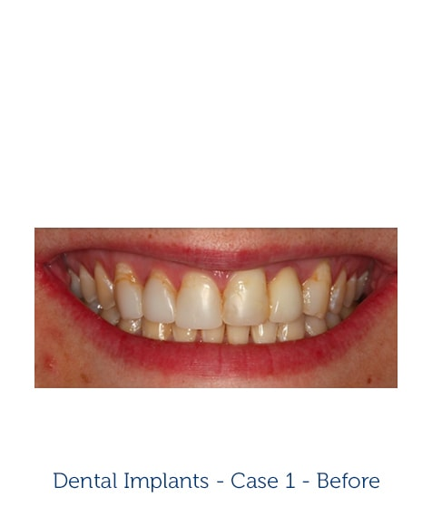Woman Smiling - Dental Implants