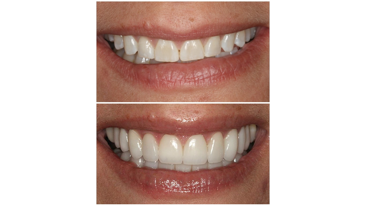 Before and After Photos of a Smile