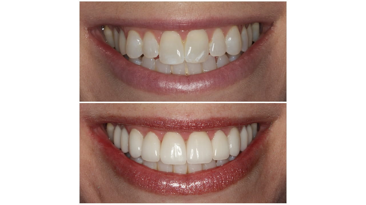 Before and After Photos of teeth