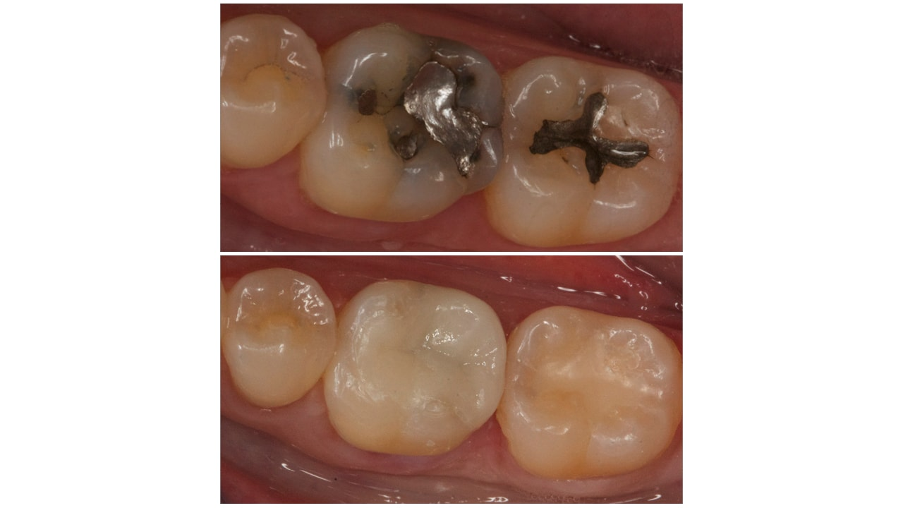Before and After Photos of Dental Work