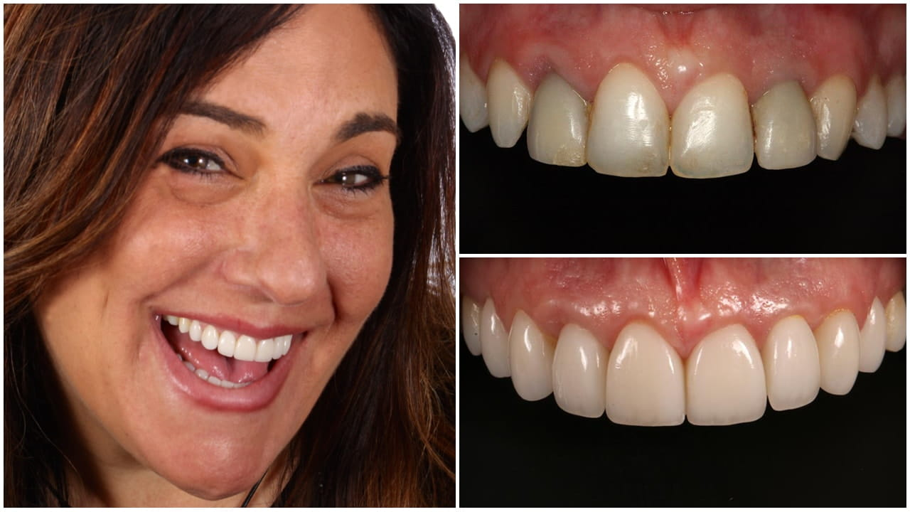 Woman Smiling with Before and After Photos of Her Teeth