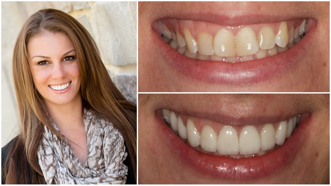 Woman smiling and before and after photos of her teeth