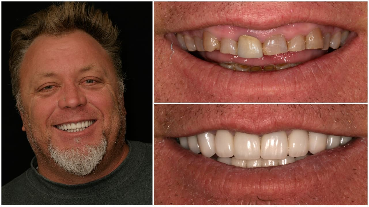 Man Smiling with before and after photos of his teeth