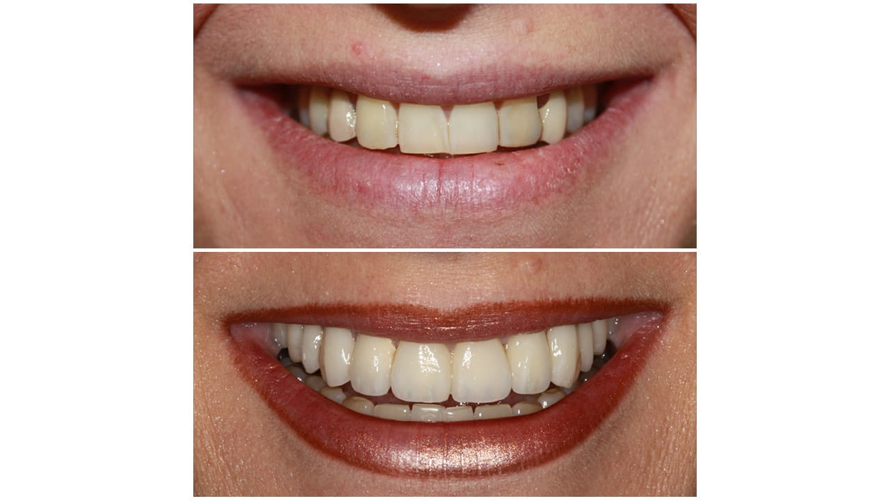 Before and After Photos of a Patient's Teeth
