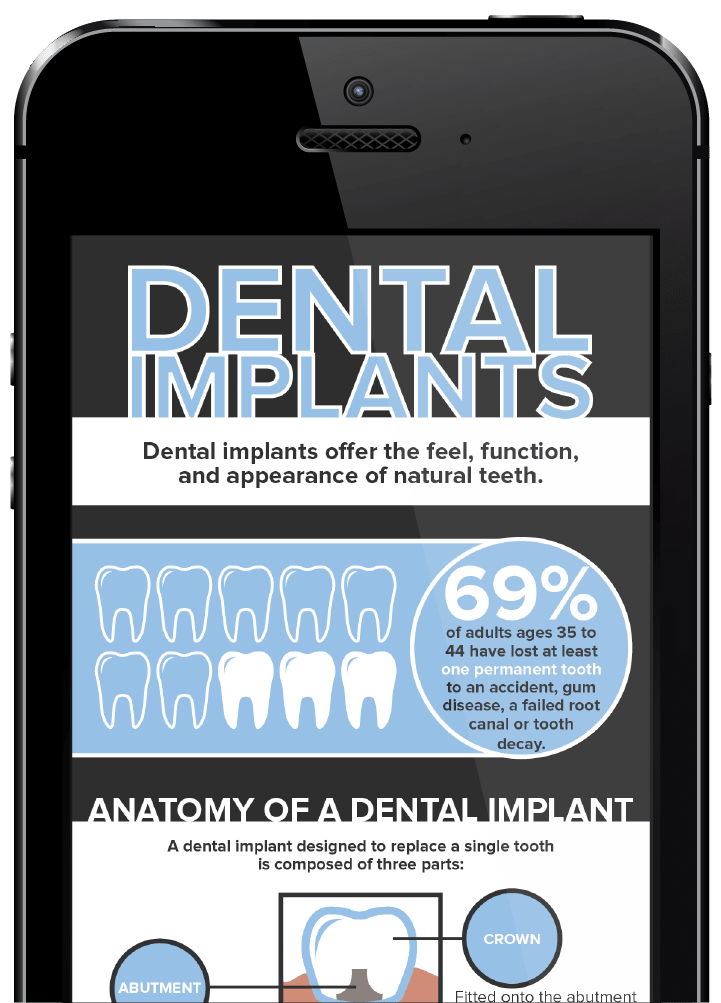 philadelphia dental implants free infographic phone preview