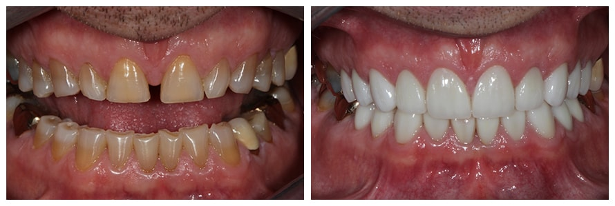 Before and After example of Cosmetic Dentistry in North Wales