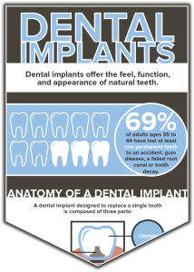 Stelzer Dental Implants Infographic-preview graphic